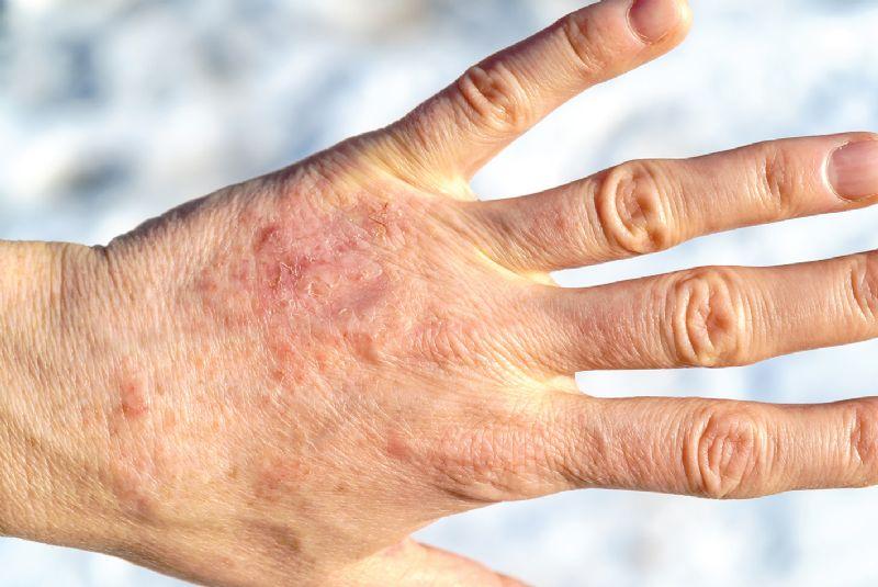 Elderly lady dry skin psoriasis